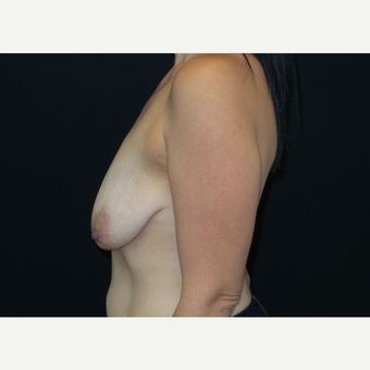 25-34 year old woman treated with Breast Lift with Implants before 3305656