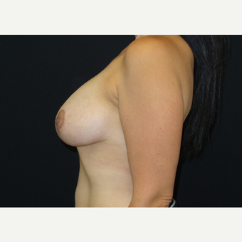 25-34 year old woman treated with Breast Lift with Implants after 3305656