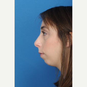 23 year old female with a small recessive chin underwent chin augmentation before 3839798