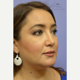 35-44 year old woman treated with Cheek Augmentation after 3421932
