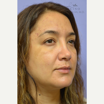35-44 year old woman treated with Cheek Augmentation before 3421932