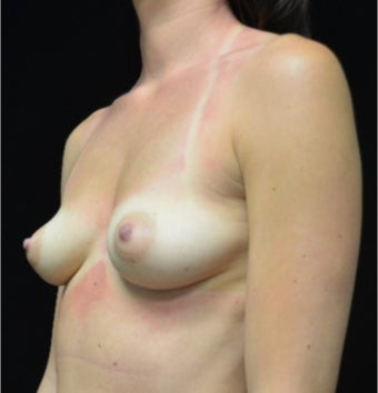25-34 year old woman treated with Breast Augmentation before 3305092