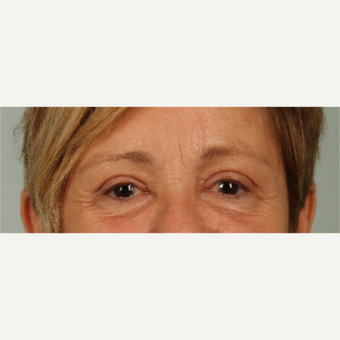 61 year old woman treated with Eyelid Surgery after 3440334