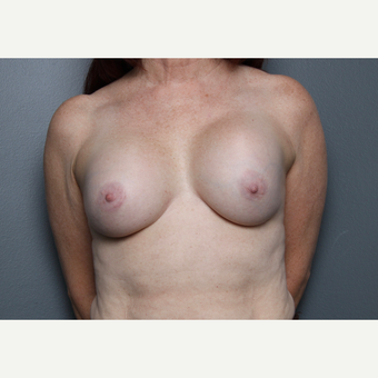 Breast Revision before 3804031