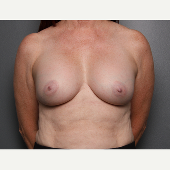 Breast Revision after 3804031