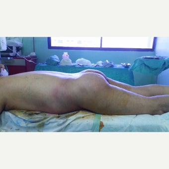 55-64 year old man treated with Brazilian Butt Lift after 2551562