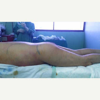 55-64 year old man treated with Brazilian Butt Lift before 2551562
