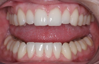 Invisalign after 372765