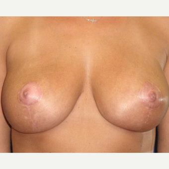 35-44 year old woman treated with Breast Implant Revision after 3071236