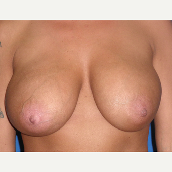 35-44 year old woman treated with Breast Implant Revision before 3071236