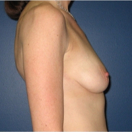 35-44 year old woman treated with Breast Lift before 3109168