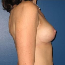 35-44 year old woman treated with Breast Lift after 3109168
