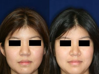 Rhinoplasty before 229772