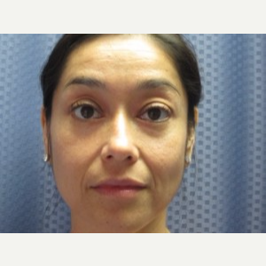 Eyelid Surgery after 3164334