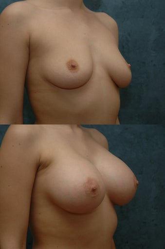 Breast Augmentation after 55860