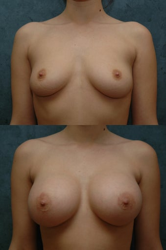 Breast Augmentation before 55860
