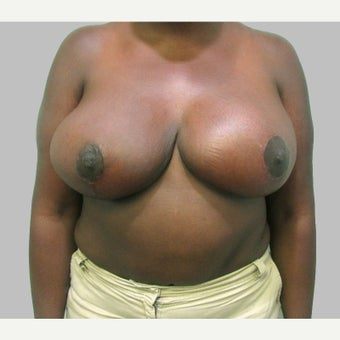 Breast Reduction after 2279058