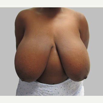 Breast Reduction before 2279058