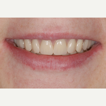 55-64 year old woman treated with Dental Implants after 3549650