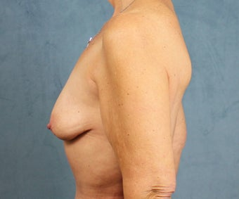 Breast Lift with Implants before 3032963