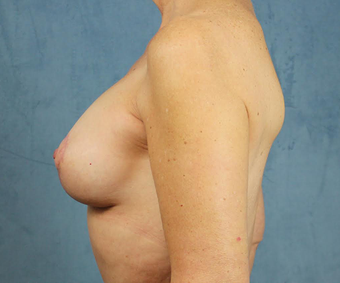 Breast Lift with Implants after 3032963