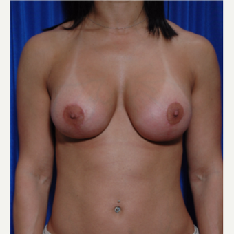 25-34 year old woman treated with Breast Implant Revision, lift revision and fat grafting after 3318931