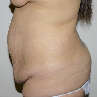 25-34 year old woman treated with Tummy Tuck before 3496110
