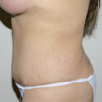 25-34 year old woman treated with Tummy Tuck after 3496110