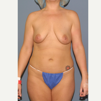 25-34 year old woman treated with Breast Lift with Implants before 3454511