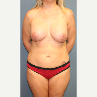 25-34 year old woman treated with Breast Lift with Implants after 3454511
