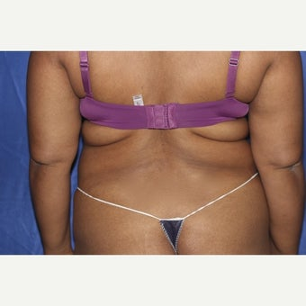 45-54 year old woman treated with Laser Liposuction