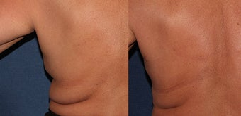 CoolSculpting Before and After before 1251032