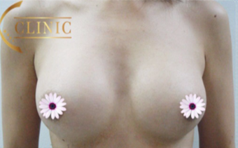 35-44 year old woman treated with Breast Augmentation after 3765993