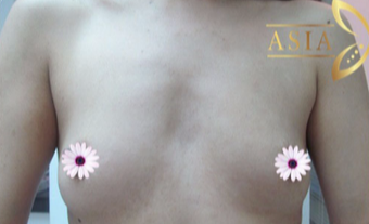 35-44 year old woman treated with Breast Augmentation before 3765993