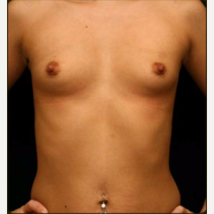 18-24 year old woman treated with Breast Augmentation before 3657805