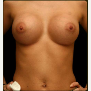 18-24 year old woman treated with Breast Augmentation after 3657805