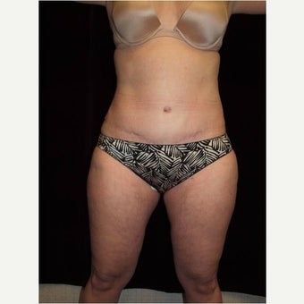 35-44 year old woman treated with Tummy Tuck after 2568606