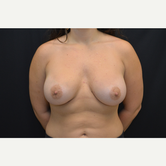 24-year old female - bilateral breast augmentation - silicone gel implants after 3748639