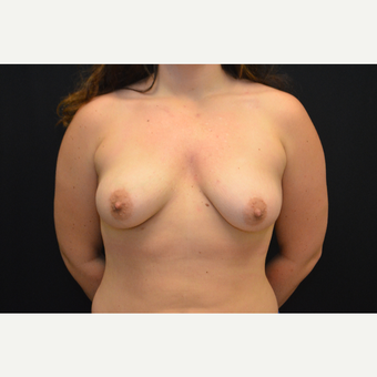 24-year old female - bilateral breast augmentation - silicone gel implants before 3748639