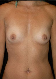 Breast Augmentation before 1301658