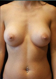 Breast Augmentation after 1301658