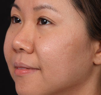 Acne Scar/Skin Texture Improvement for Asian skin after 1350493