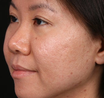 Acne Scar/Skin Texture Improvement for Asian skin before 1350493