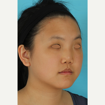 25-34 year old woman treated with Rhinoplasty before 3629047