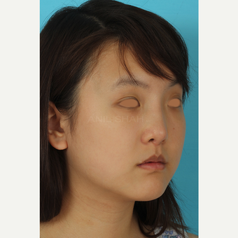 25-34 year old woman treated with Rhinoplasty after 3629047