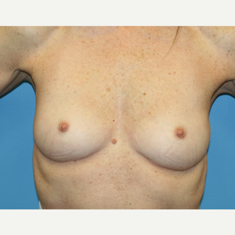 58 year old woman treated with Breast Augmentation before 3486892