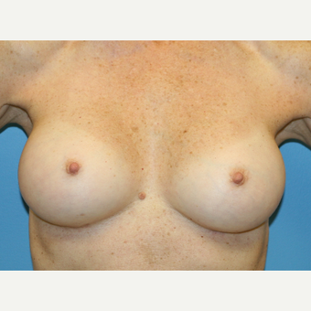 58 year old woman treated with Breast Augmentation after 3486892