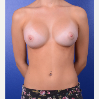 18-24 year old woman treated with Breast Implants after 3696106