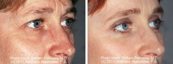 Blepharoplasty before 91480