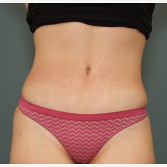 Tummy Tuck after 3003999